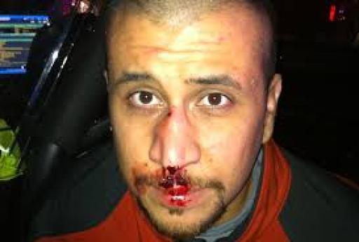 Trayvon Martin's killer George Zimmermann